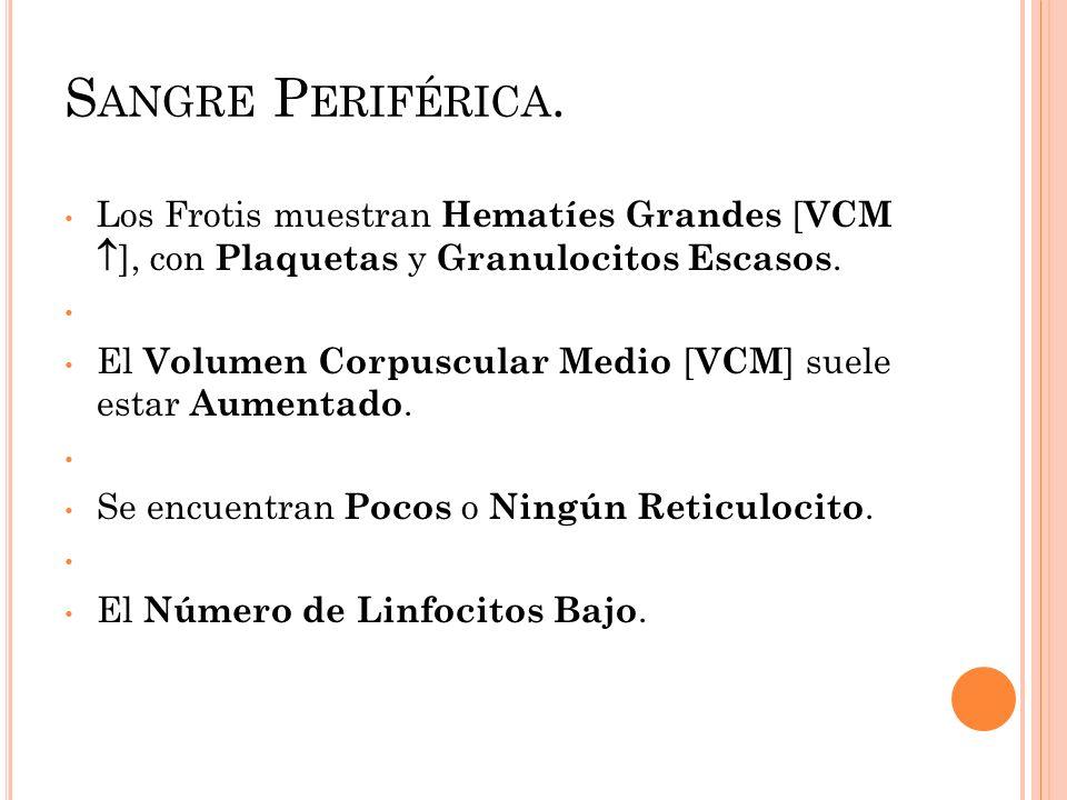 Sangre Periférica. Los Frotis muestran Hematíes Grandes [VCM ], con Plaquetas y Granulocitos Escasos.